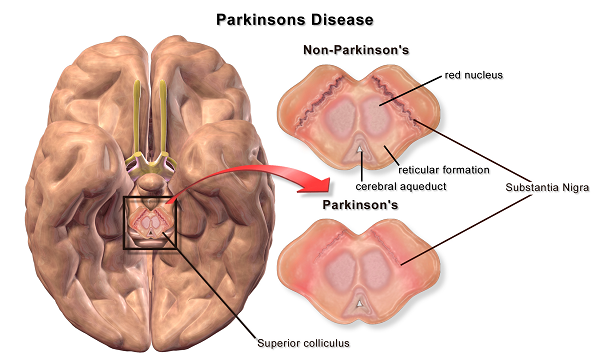 parkinson symptoms in the brain