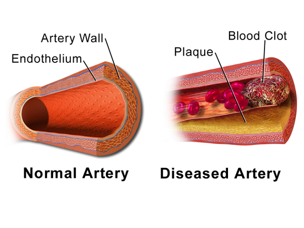 difference between normal artery and diseased artery