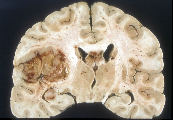 New device may prolong life of brain cancer patients.
